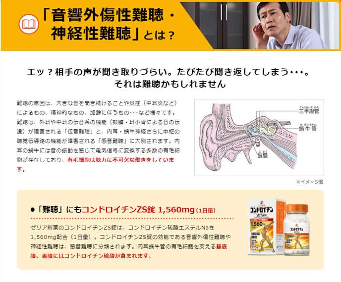 Japanstore,vn -Thuốc xương khớp Người Nhện ZS Nhật Bản Chondroitin ZS 1560mg 15