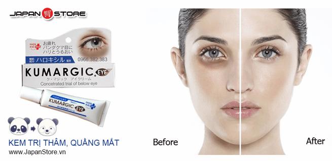 Kem tri tham quang mat Kumargic Eye-1