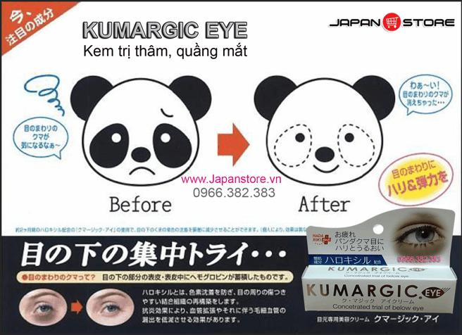 Kem tri tham quang mat Kumargic Eye-2