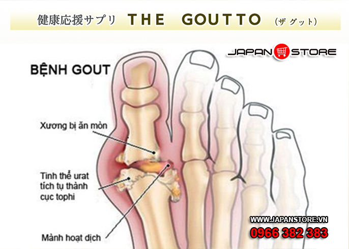 the goutto thuoc tri benh gut 6